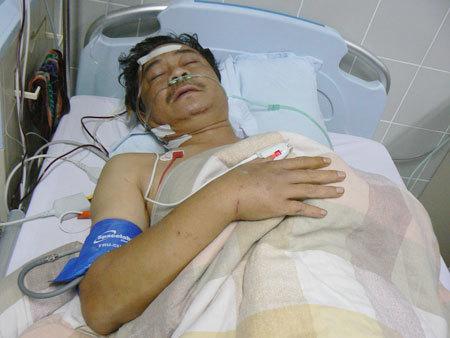 Sau khi mổ, diễn viên Hồng Sơn rất mêt, thường nằm mê man. Ảnh: Ngọc Trần.