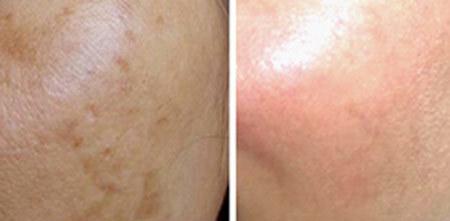 Hình ảnh khách hàng trước và sau khi điều trị nám.