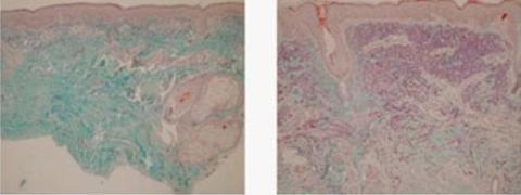 Sau khi sử dụng Dermaroller, mức độ tăng sinh collagen và estalin cao gấp 10 lần so với thông thường, theo nghiên cứu của tiến sĩ Schwarz và Laaff tại Hamburg, Đức năm 2006.