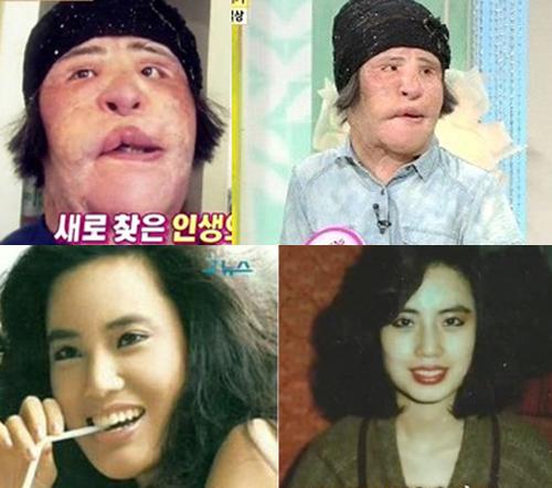 Han Mi Ok từng là ca sĩ xinh đẹp của làng giải trí Hàn những năm 1980. Hơn 20 năm qua, Han Mi Ok liên tục lên bàn phẫu thuật với mong muốn vươn tới sự hoàn mỹ. Quá nhiều lần 'dao kéo' cùng việc tự ý bơm mặt dẫn đến nhiễm trùng, gương mặt Mi Ok dần biến dạng. Mặt cô hiện nay không còn dấu vết thanh tú nào của khuôn mặt năm xưa.