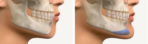 chin-implant-Toronto-6190-1402547899.jpg