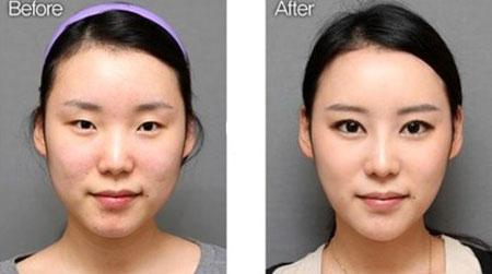 eyelid-surgery1-3122-1403924284.jpg
