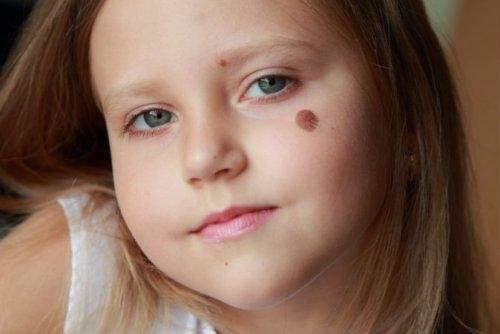 Vết chàm, vết bớt, vết sẹo ở da trẻ sơ sinh nói lên điều gì?