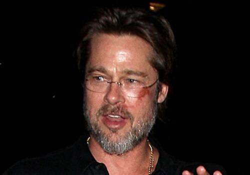 Gương mặt trầy xước của Brad Pitt.