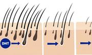 Giải mã cơ chế rụng tóc ở nam và nữ