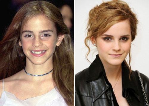 Emma-Watson-1-4041-1436241104.jpg