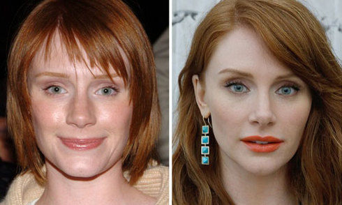 Sao Hollywood trước và sau sửa mũi, tiêm botox