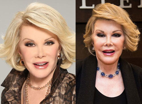 Joan-Rivers-9562-1444983089.jpg