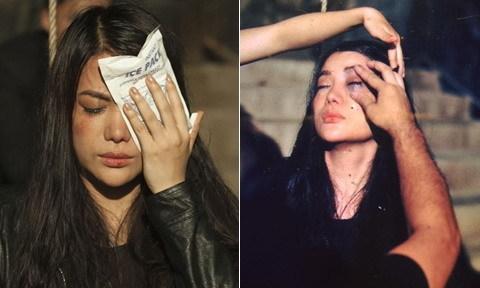 Trương Ngọc Ánh gặp tai nạn trên trường quay vào ngày sinh nhật