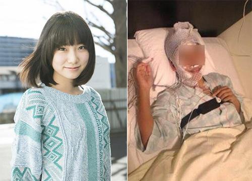 Năm 2016, ca sĩ Nhật Bản Tomohiro Iwazaki (sinh năm 1995) bị fan cuồng chém hơn 30 nhát dao tại buổi biểu diễn, giao lưu fan.