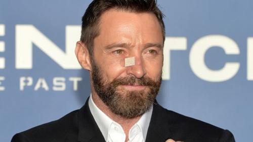 Ngôi saoThe Wolverine phát hiện bị ung thư da vùng mũi qua một cái mụn nhỏ.